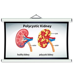 Diagram of polycystic kidney vector