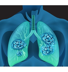 Lung cancer in human body vector