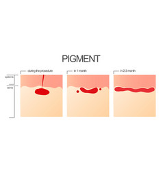 The process of engraftment of the pigment after vector