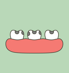 Decay tooth or dental caries vector