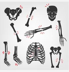 Bones fractures icons vector