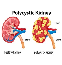Diagram showing polycystic kidney vector image