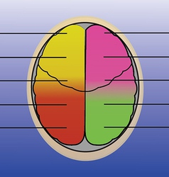 Sections of human brain vector