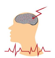 Stroke develop in human brains vector
