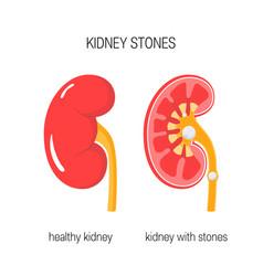 Kidney with stones vector
