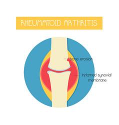 A bone with rheumatoid arthritis vector