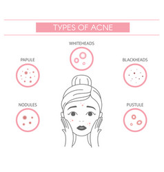 Types acne pimples nodules papule whiteheads vector