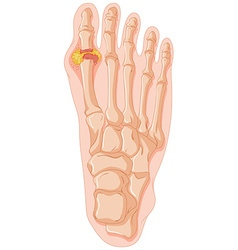 Diagram showing gout toe vector image