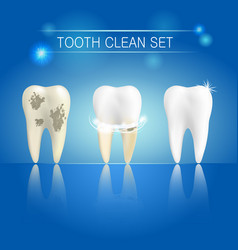 set of clean and dirty tooth on blue background vector image