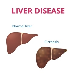 cirrhosis of the liver vector image