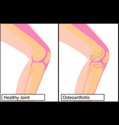Healthy knee joint and osteoarthritis medical vector