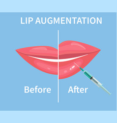 Lip augmentation before and after lip filler vector