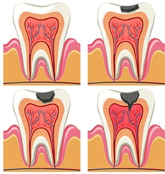 Tooth decay diagram in details vector