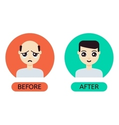 Cartoon man before and after hair transplantation vector