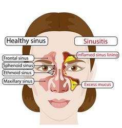 sinusitis vector image vector image