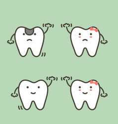Step of decay tooth to first teeth vector