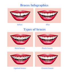 teeth braces types realistic infographics vector image