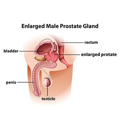 Enlarged male prostate gland vector image