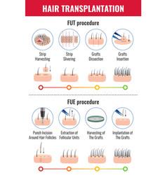 Hair transplantation infographics vector