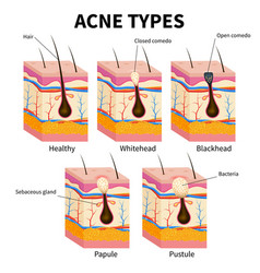 Acne types pimple skin diseases anatomy medical vector
