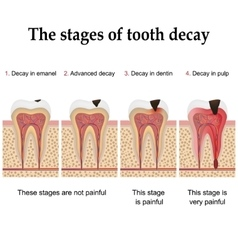 Tooth decay formation vector