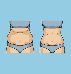 Female belly fat loss plastic surgery abdomen vector