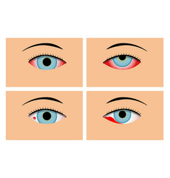 Conjunctivitis and red bloodshot eyes vector