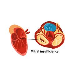 Heart disease poster vector