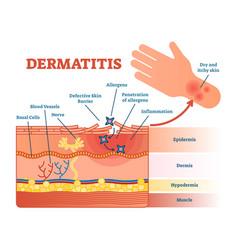 dermatitis flat diagram vector image vector image