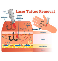 laser tattoo removal diagram vector image vector image