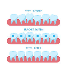 Process correction teeth with orthopedic vector