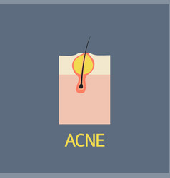 Acne icon vector