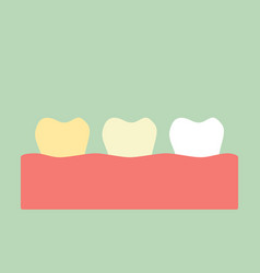 Yellow to white tooth - teeth whitening concept vector