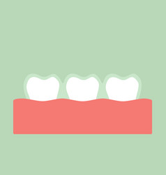 teeth wear silicone trainer or invisible braces vector image