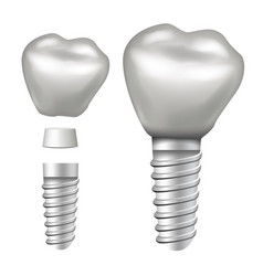 dental implant implant structure crown vector image