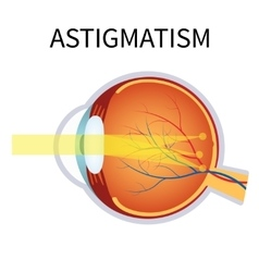 Astigmatism Eyesight problem blurred vision vector image
