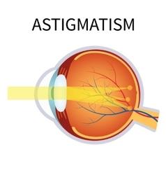 Astigmatism Eyesight problem blurred vision vector