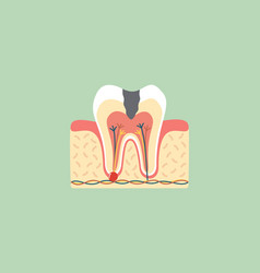 Decay tooth anatomy structure vector