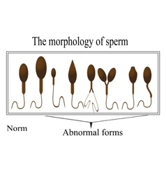 The morphology of the sperm Normal and abnormal vector image
