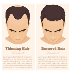 Male pattern baldness design template vector