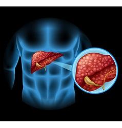 Sclerosis diagram in human body vector image vector image