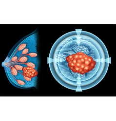 Breast cancer in human vector image