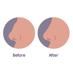 nose before and after plastic surgery vector image