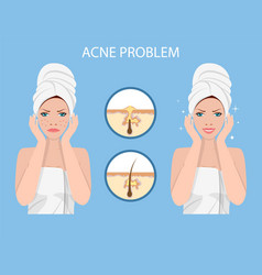 Face with acne vector