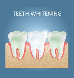 teeth whitening medical poster design vector image