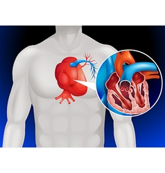 Heart disease diagram in detail vector image