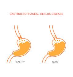 Reflux disease vector