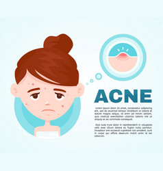 Acne infographic modern flat style vector