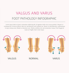 Foot deformation as medical desease infographic vector