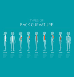 types of back curvature medical desease vector image